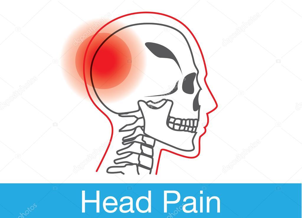 Esquema de dolor de cabeza — Vector de stock © solar22 #101582726