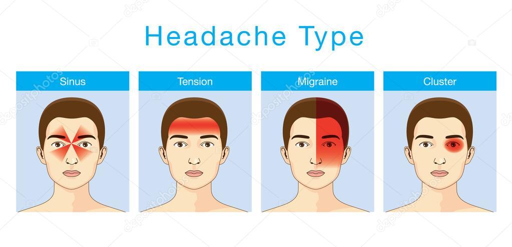 typer av huvudvärk