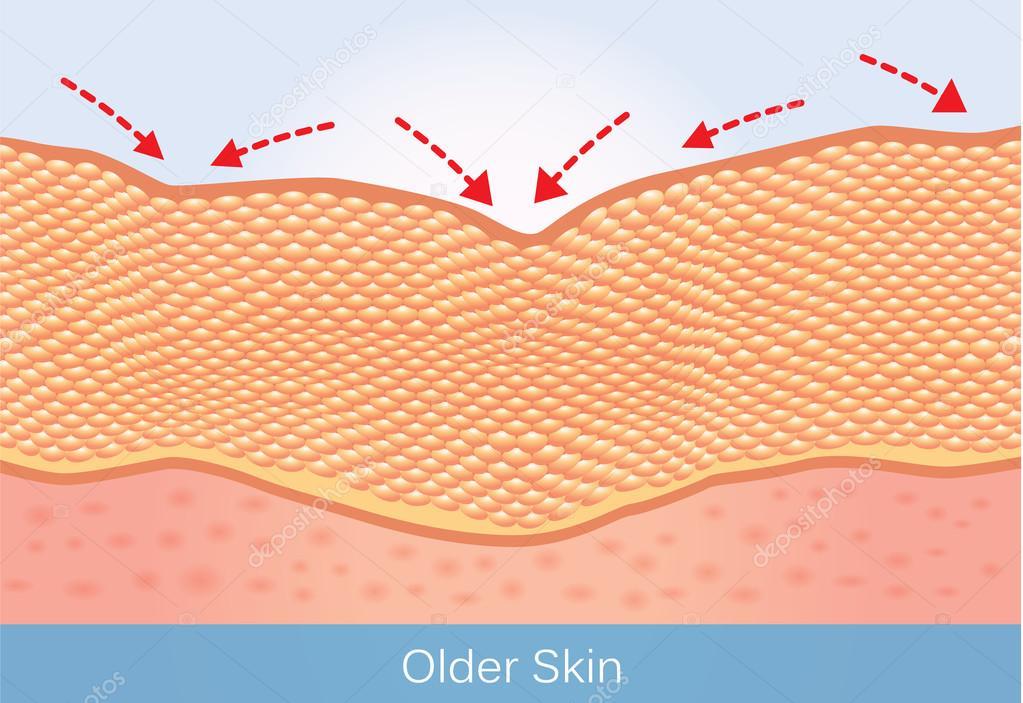 Skin conditions in the elderly  — Stock Vector © solar22