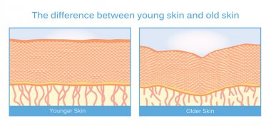 Young skin and old skin.