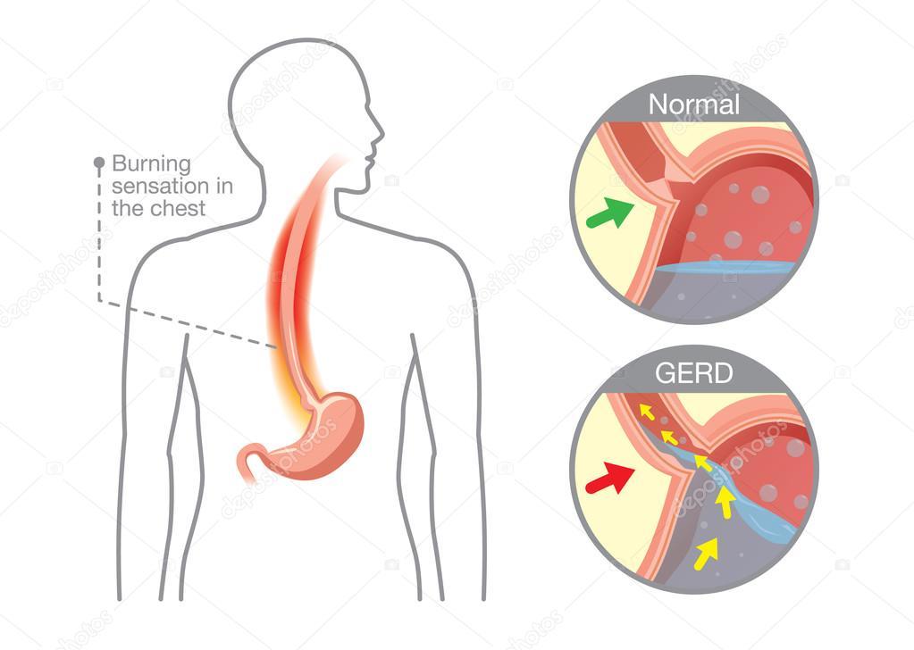 Causa de la enfermedad por reflujo gastroesofágico en el estómago ...