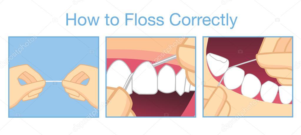 ca9fd499a Como usar fio dental corretamente para limpeza dos dentes — Vetores de Stock