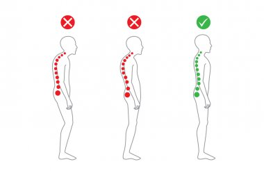 Correct alignment of body in standing posture