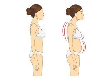Incorrect standing posture make bad personality