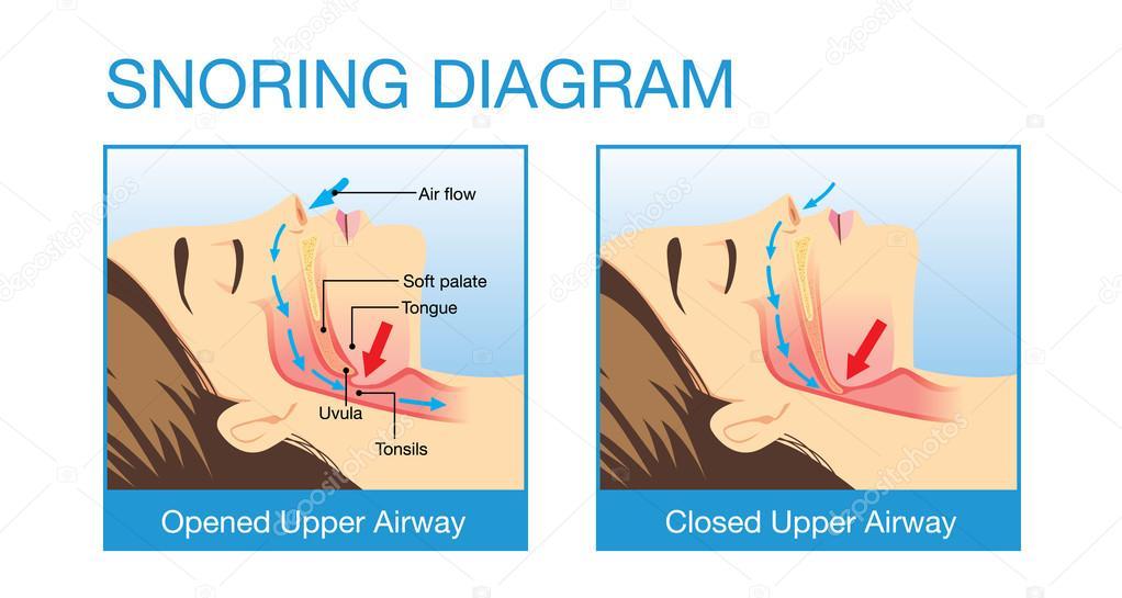 Anatomía de la vía aérea humana mientras que roncar — Archivo ...