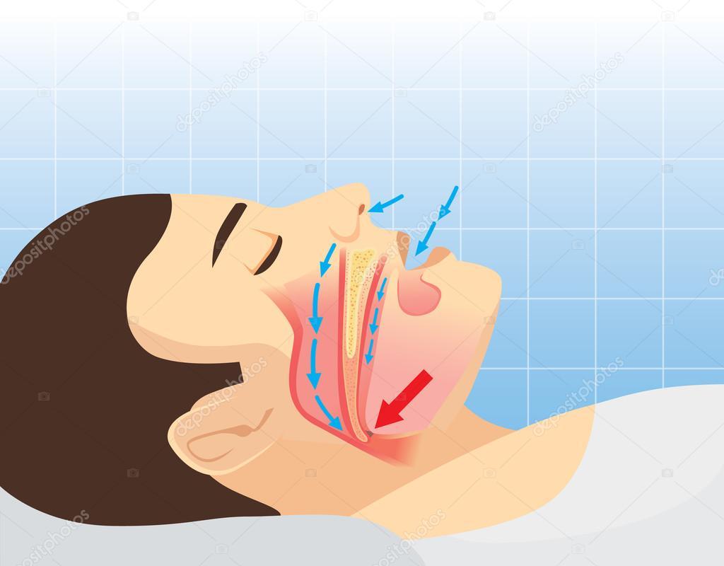 Anatomía de la vía aérea humana mientras que roncar — Vector de ...