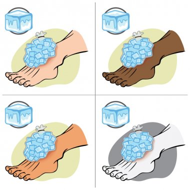Illustration First Aid person ethnic, standing with ice pack. Ideal for catalogs, information and medical guides