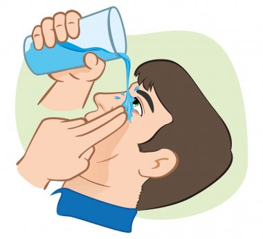 Illustration First Aid flush eyes with water. ideal for training materials, catalogs and institutional clip art vector