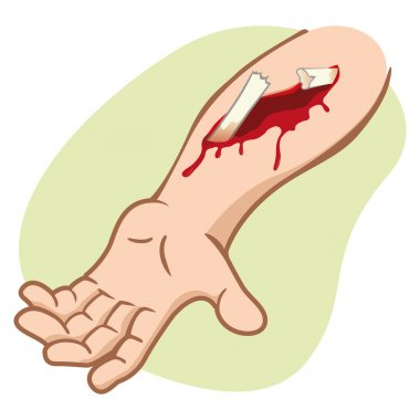 Illustration of a human arm with a compound fracture showing the broken bone. Ideal for catalogs, newsletters and first aid guides