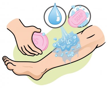 Illustration of a leg receiving first aid, wash injured with soap and water. Ideal for medical supplies, educational and institutional.