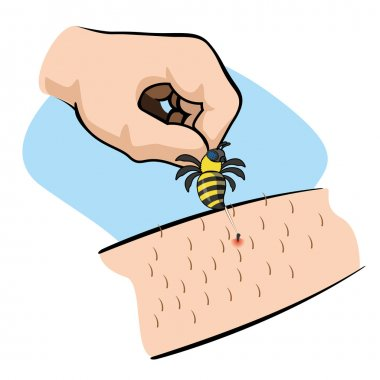 Illustration First Aid person bee sting arm. Ideal for catalogs, informative and medical guides