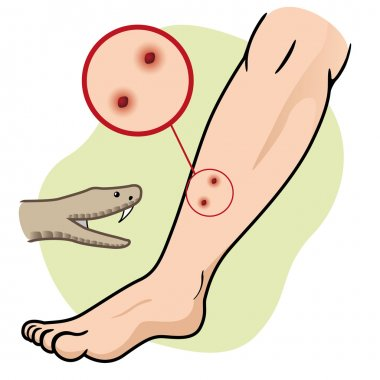 Illustration First Aid person chopped leg snake. Ideal for catalogs, informative and medical guides
