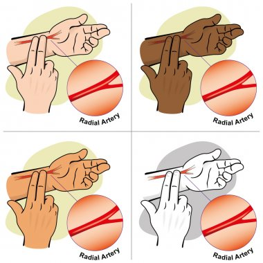 Illustration First Aid person measuring the pulse Carotid artery, ethnicities. Ideal for catalogs, informative and medical guides