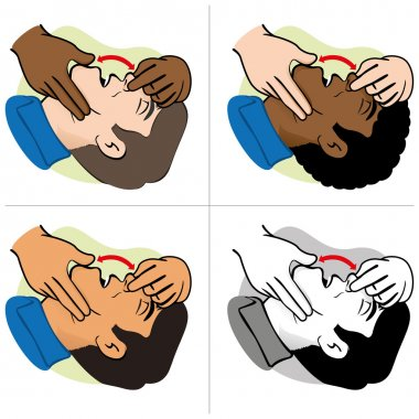 Illustration First Aid person opening the mouth clearing airway, ethnicities. Ideal for catalogs, informative and medical guides