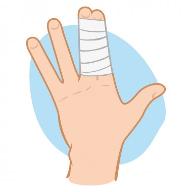 Illustration of a human hand with fingers bunched with bandages. Ideal for catalogs, information and first aid guides