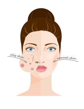 Skin types. Vector