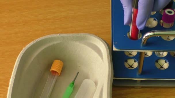 Laborantka drží trubice krevní test