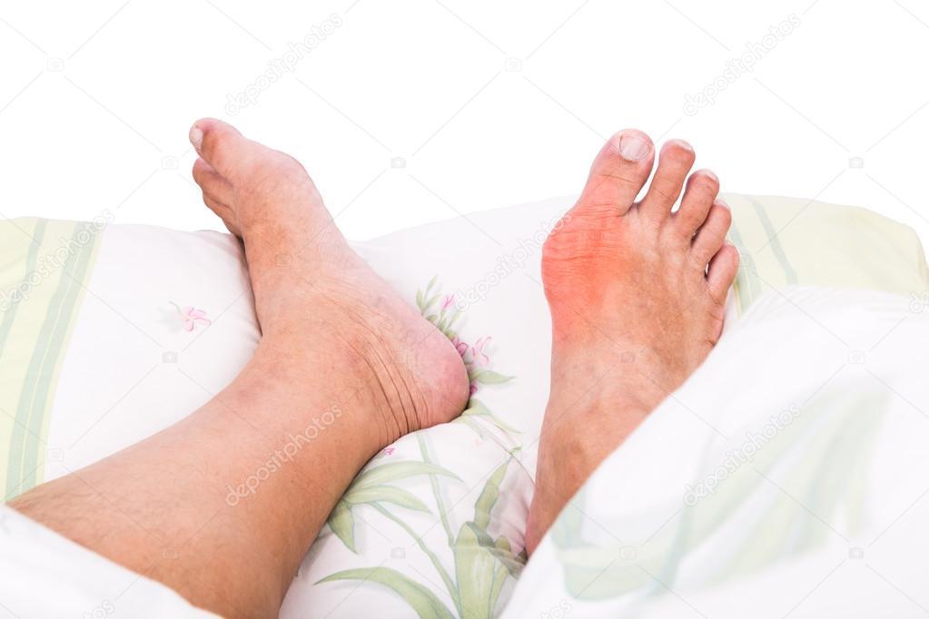 duzzadt toe artritisz