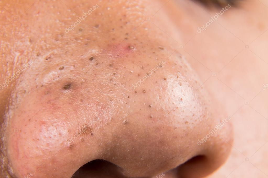 8 best scrubs to remove blackheads on nose - 1280×720