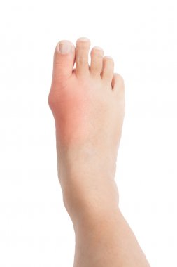 Deformed big toe due to painful gout inflammation