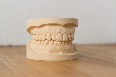 Dental mold showing a full set of teeth