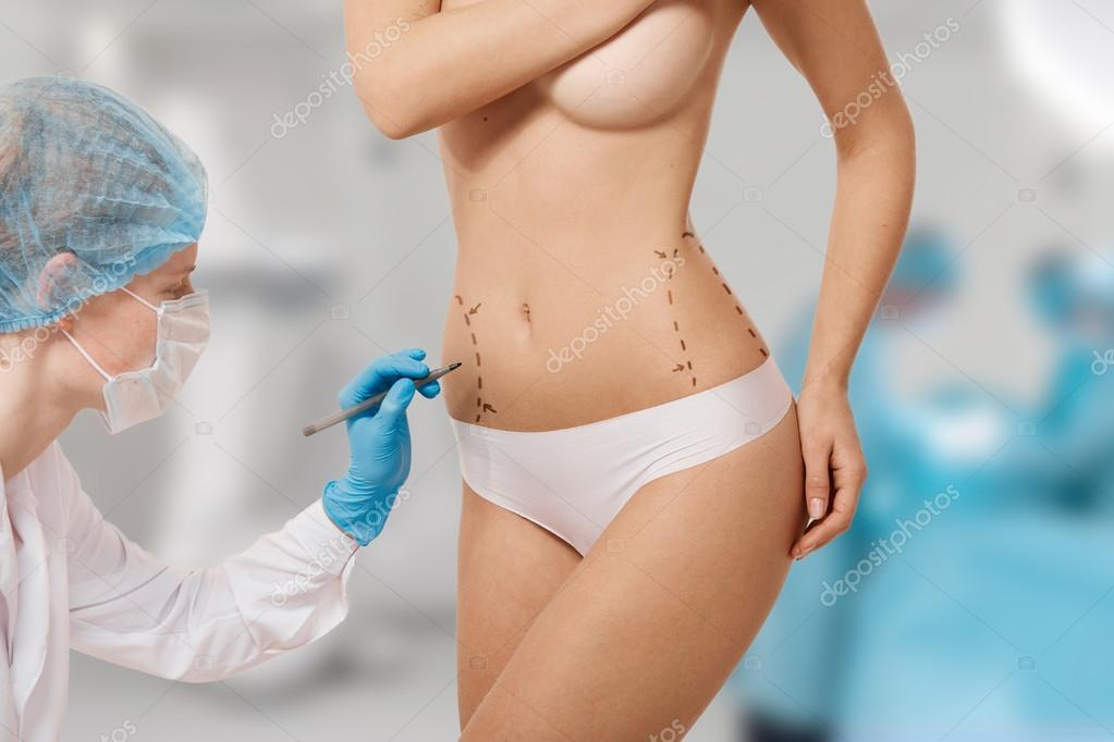 Plastic surgery doctor draw line on patient breast augmentation implant. Woman belly marked out for cosmetic surgery in surgery room interior