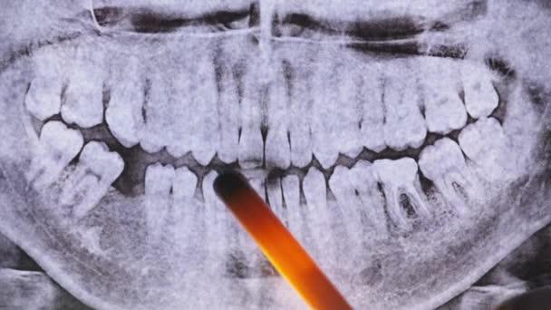 Zahnröntgen des Kiefers mit Zähnen. Versiegelte Backenzähne. Zahnarzt untersucht den Zahnbogen