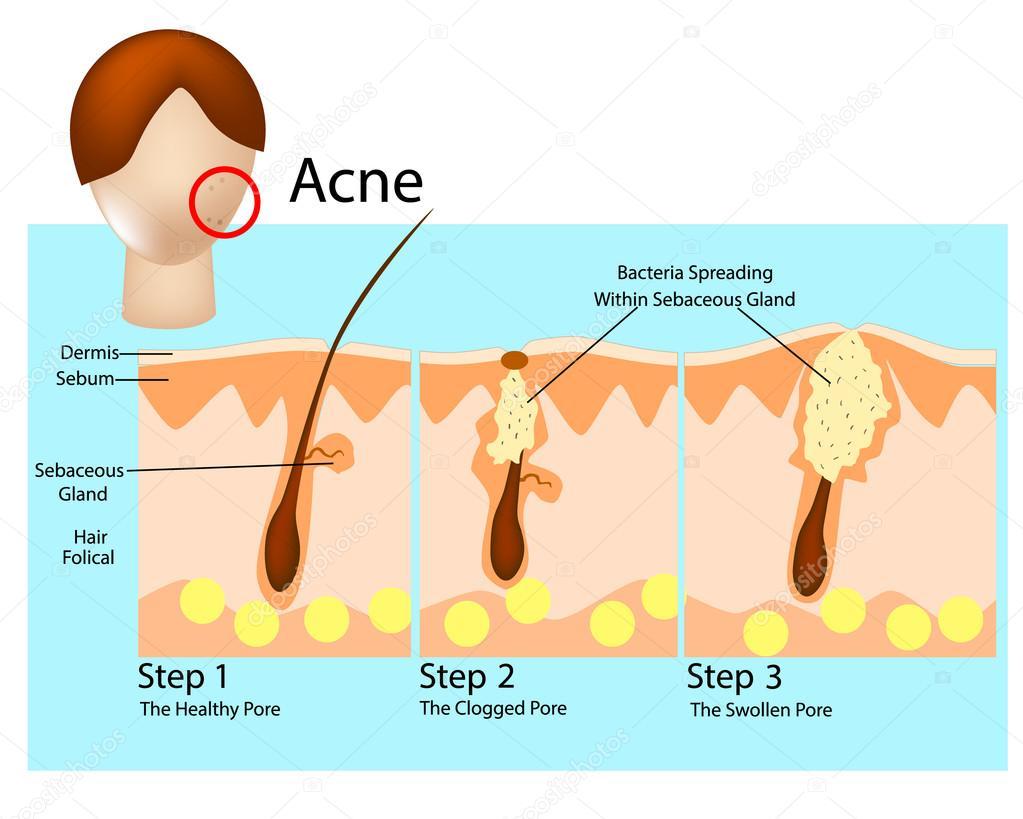 Cómo se desarrolla el acné. Etapas del acné. Formación de piel acné ...
