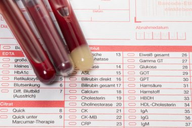 Blood test, blood samples on a laboratory form