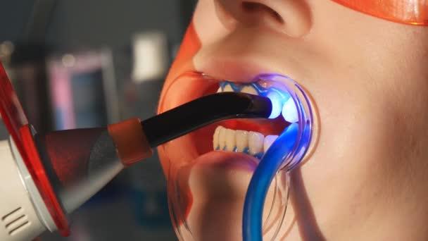 zubař s dentální Polymerizační lampy v dutině ústní.