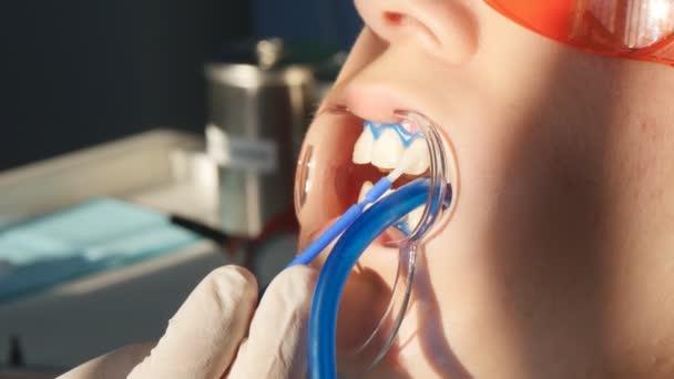 Whitening teeth closeup in slow motion