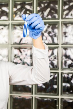 science, chemistry, biology, medicine, people concept - close-up of female scientist holding tube with sample making and test or research in clinical laboratory