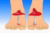 Fotografie Wulstlinge Pilze zwischen den Zehen Füße Zehen Pilz zu imitieren