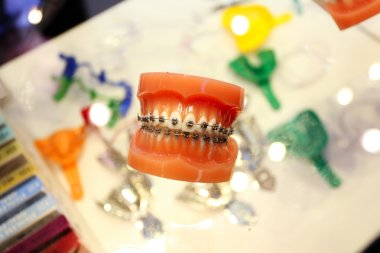 Plastic teeth with orthodontic brackets as a demo.