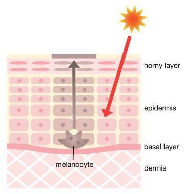 infographic skin illustration. skin mechanism of facial blotches