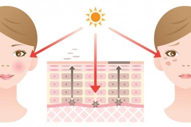 infographic skin illustration. skin spot mechanism