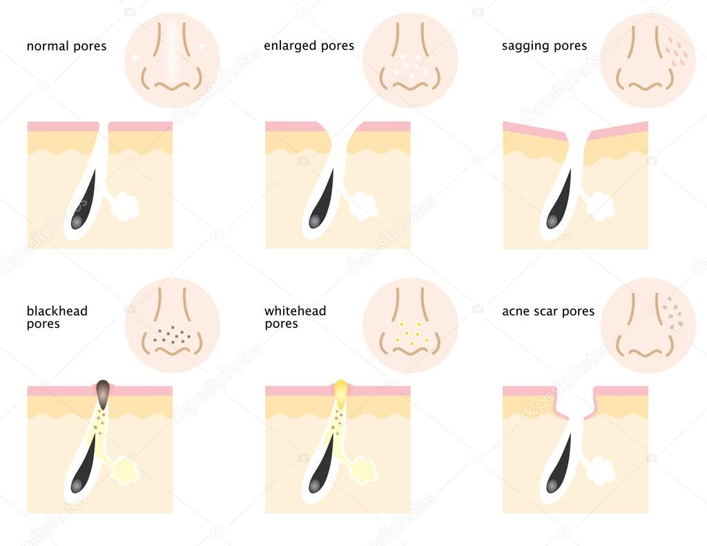 Pore diagram | Diagram of skin pores — Stock Vector © mug5 ... on nose shapes, nose cuffs, nose bone, nose cartilage, nose ulcers, nose smelling, nose cavity, nose anatomy, nose structure, nose types, nose piercing, nose rings, nose drawing, nose sketch, nose infection symptoms, nose breathing, nose and throat, nose jokes, nose cartoon, nose blind,