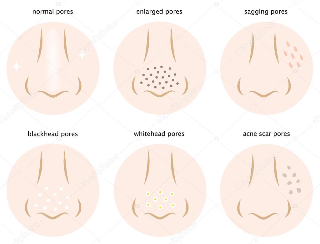 Cyst pimple diagram