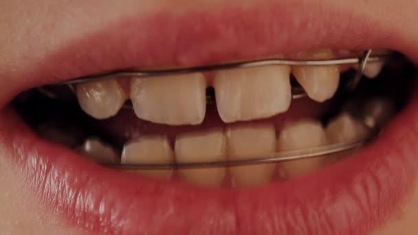 dental plate in the teeth