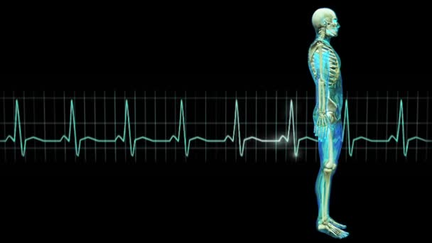 Figure and electrocardiogram