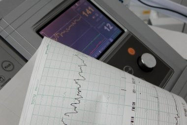 Cardiograph fixing and printing graphs of heart rate