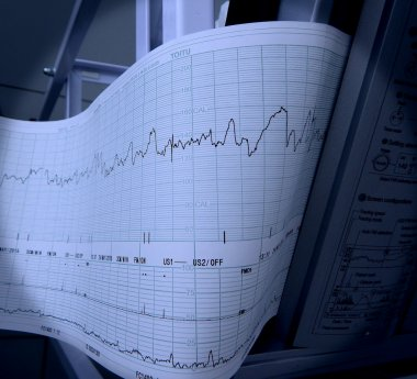 Detailed shot of cardiograph fixing and printing graphs of heart rate stock vector