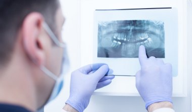 Male doctor looking at dental x-ray