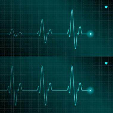 ECG tracing
