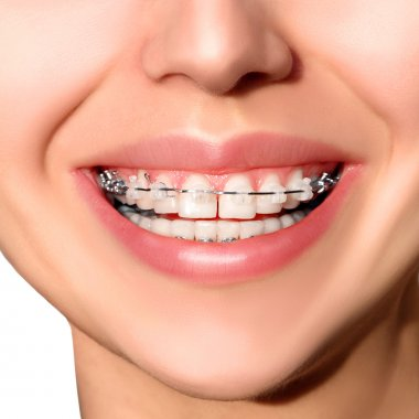 Closeup Ceramic and Metal Braces on Teeth. Broad Smile with Self-ligating Brackets.