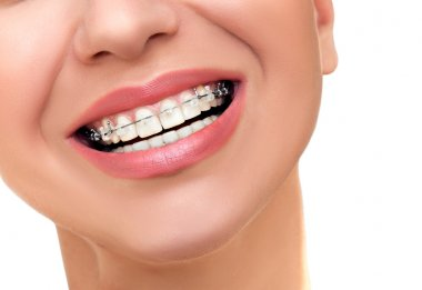 Orthodontic Treatment. Dental Brackets.