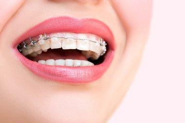 Braces on Teeth Closeup