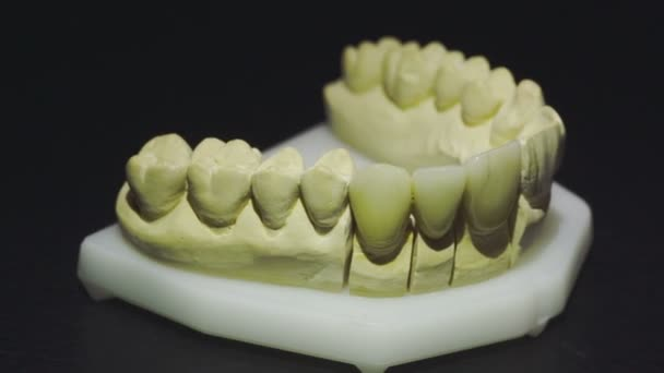 Close up view of ready denture 5
