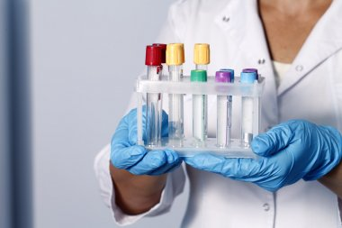 tubes for sampling and analyzes, medical background