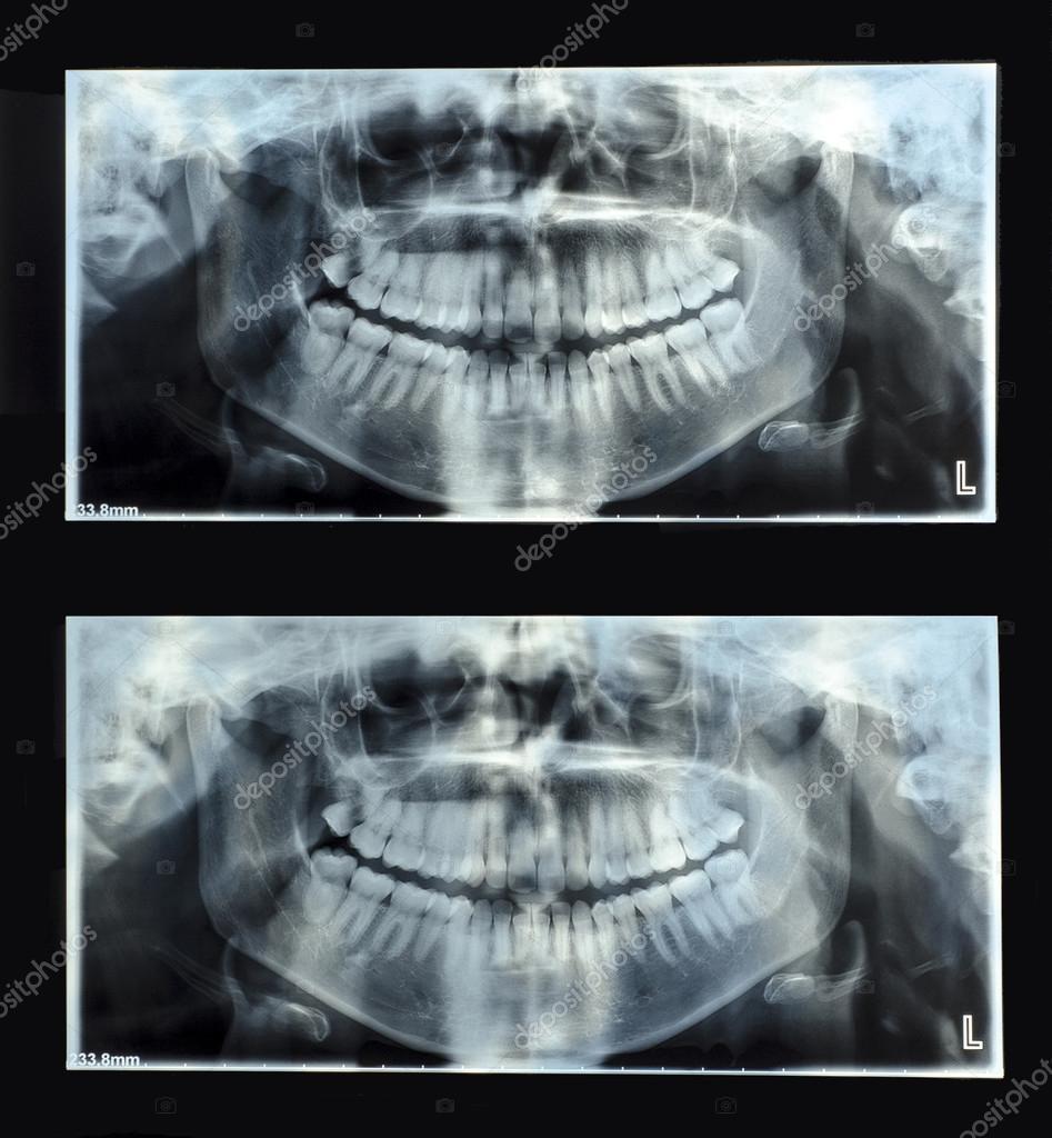 radiografía panorámica dental — Fotos de Stock © AniphaeS #91668496